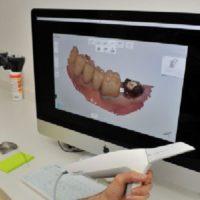 dentaire et numérique